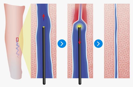 하지정맥류 레이저 치료
